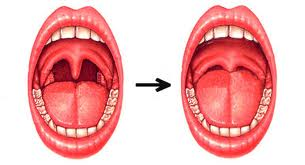 Sleep Apnea Tongue