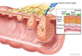 bladder 4