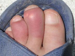 gout 2