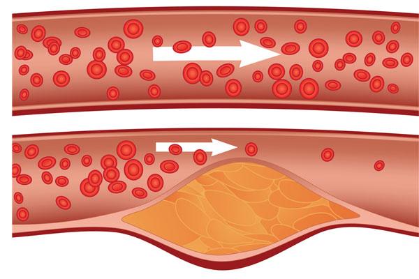 cholesterol 1